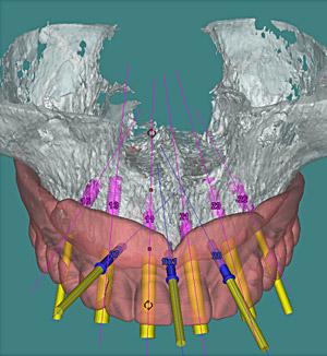 pianificazione chirurgica virtuale